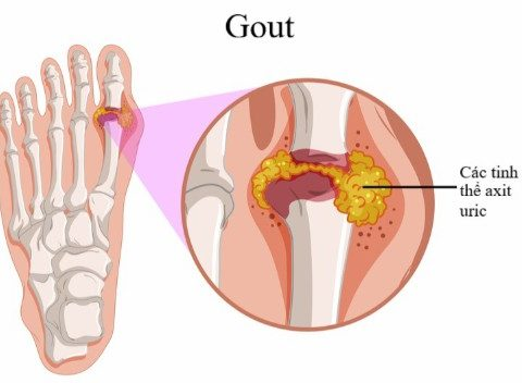 Tác dụng của nấm linh chi – Dược liệu điều trị bênh Gout