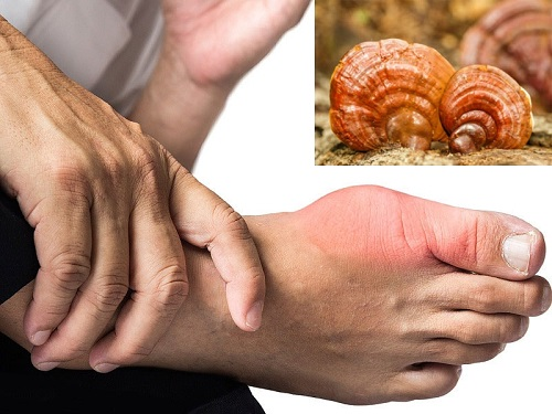 tác dụng của nấm linh chi trong việc chữa beeh gout